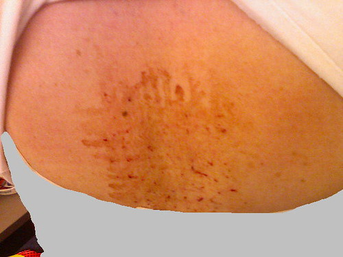My mid-back post mesotherapy.