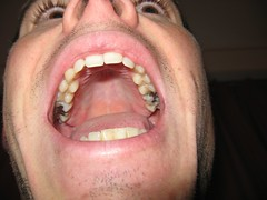 upper jaw with silver fillings