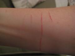 kitteh battle scars