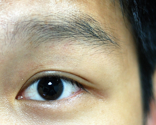 點了散瞳劑的眼睛