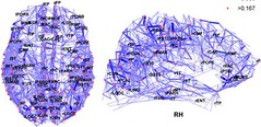 Cerebral cortex connection network