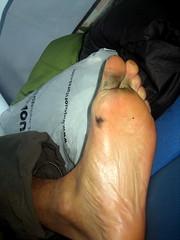 Mouldy Feet