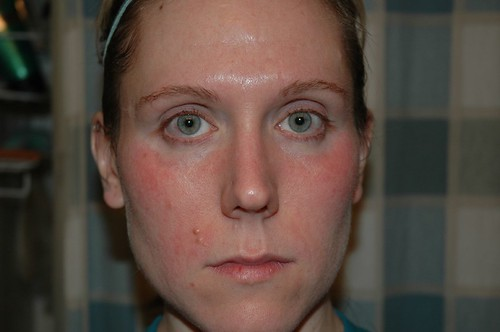 Arbonne Trial: Day One - sensitivity/break out -- not too good