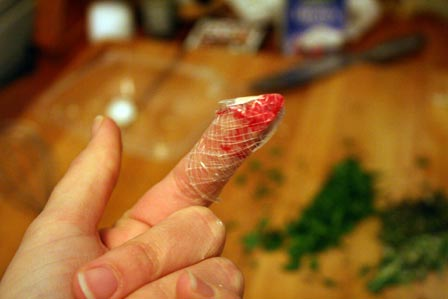 Kitchen injury