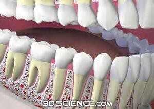 reference_arthritis, teeth_skullcut_full_mouth_web, 22338-bigthumbnail
