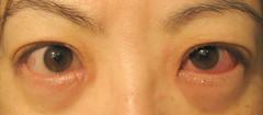 My eyes about 1 week ago