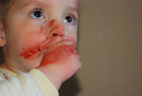 bloody nose 3