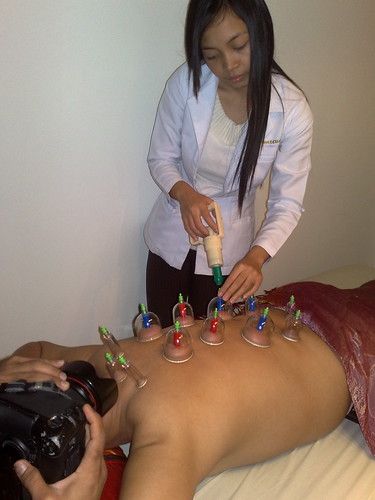 Ventosa Cupping