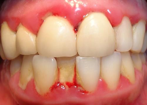Gingivitis crónica grave