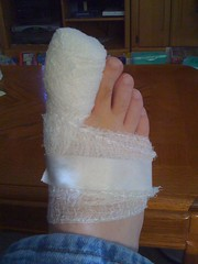 Wrapped up from ingrown-toenail removal surgery