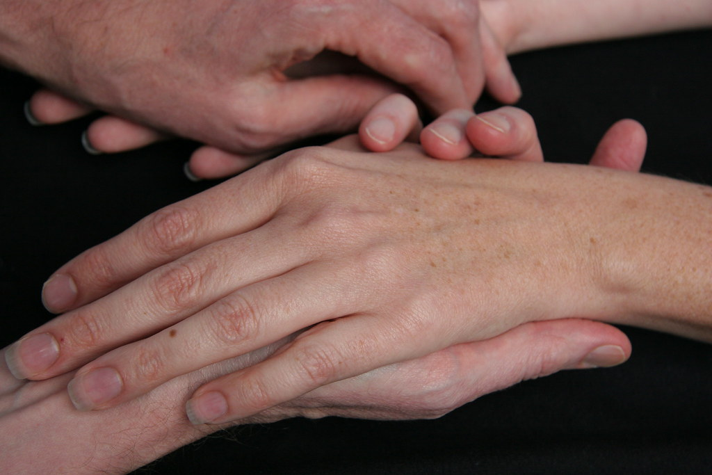 Hands signs in Marfan syndrome: thin fingers, long hand shape ...