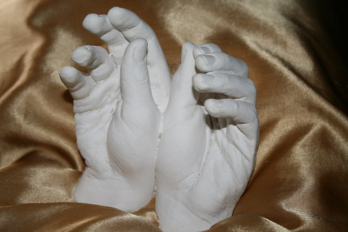 Sean's hand cast in cement
