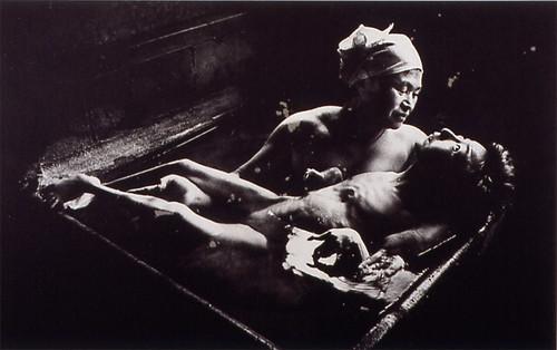 W Eugene Smith, Tomoko Uemura in Her Bath, Minamata, 1972