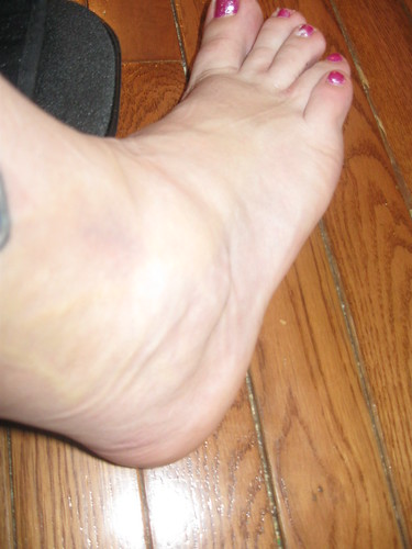 A recent photo of my bad luck, a sprained ankle