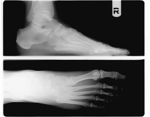 20090312 - Clint - foot x-ray - right (bad foot)