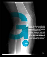 G spot  / point G / X ray serie #1