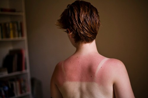 It's the time of year for unexpected sunburns