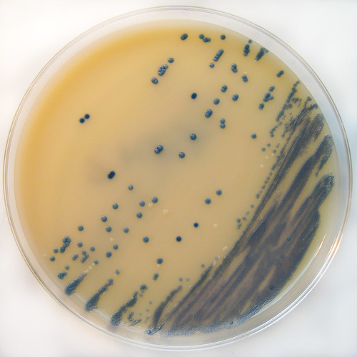M.R.S.A. Staphylococcus aureus on Brilliance MRSA Chromogenic Agar