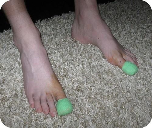 Toe Surgery - 6-13-11