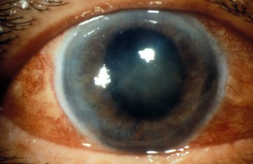 International Centre for Eye Health - Acute glaucoma, red eye.