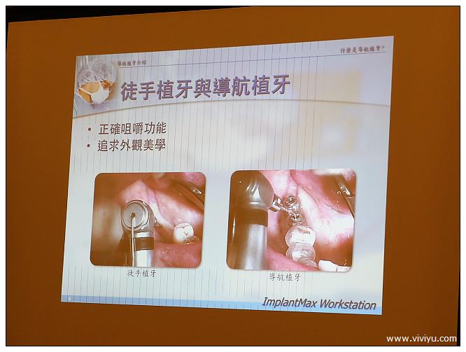 台北,士林,導航植牙,悅庭牙醫,植牙,牙醫 @VIVIYU小世界