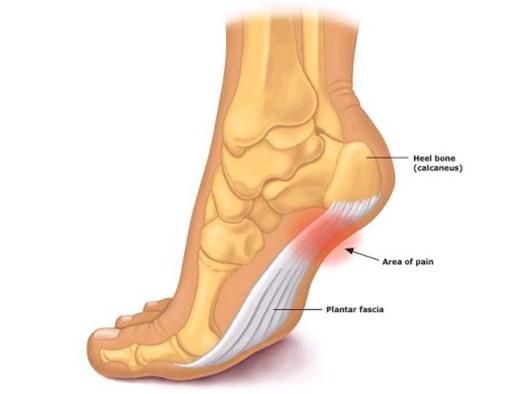 Arthritis In Heel Of Foot