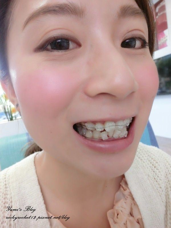 【全瓷·牙套】全瓷冠牙套2014 – TouPeenSeen部落格