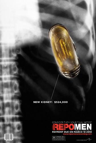REM_Wld1Sht_Kidney_FEB04_1