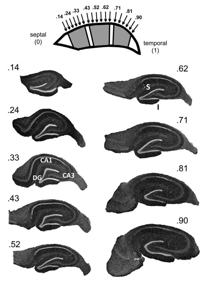 Dorsoventral vs. Septotemporal hippocampus (5/6)