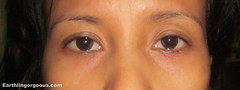 after use of elianto revitalizing & firming eye zone treatment patch