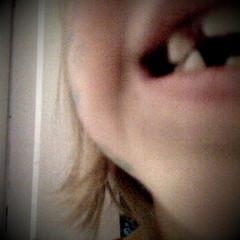 Last tooth