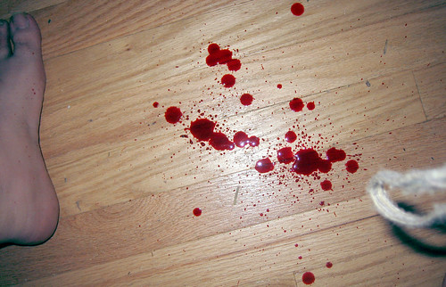20100625 - Clint's scissor injury - IMG_1019 - bloody floor