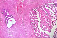 Endometriosis in Wall of Fallopian Tube