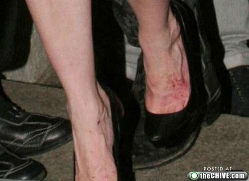 ugly-celebrity-feet-111