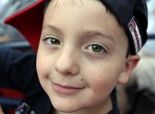 Baseball freckles