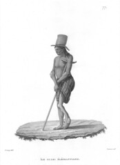 Man with Leprosy