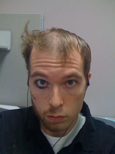 peanuttiest half-bearded man
