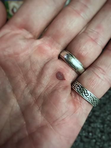 Today is all about...successfully completing Crossfit without popping my blood blister