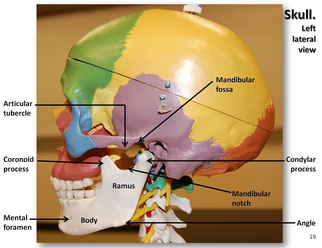 Multi Colored Skull Lateral View With Labels