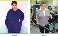 5182903436 4d89178b7a m - Consider These Ideas The Next Time You Try To Lose Weight