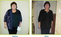 5182903622 275bbb9afa m - Successful Weight Loss Made Easy For Dummies