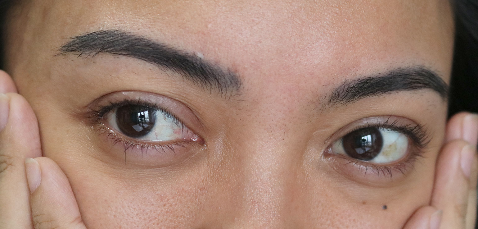 2 Olay Eyes Review Photos Before and After - She Sings Beauty by Gen-zel Habab