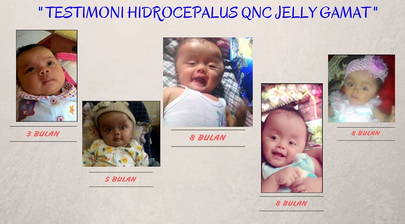 Image result for testimoni qnc jelly gamat untuk tumor