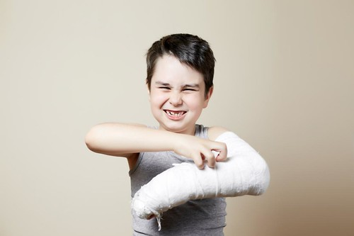Jointsreplacements-Buckle fractures: Risk factors and recovery