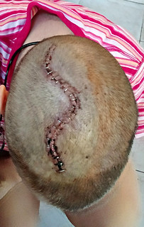 Craniotomy Scar