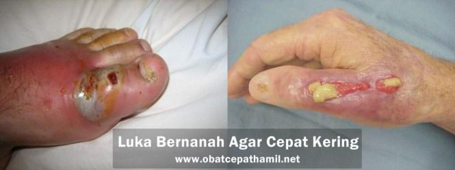 Obat Luka Bernanah Agar Cepat Kering