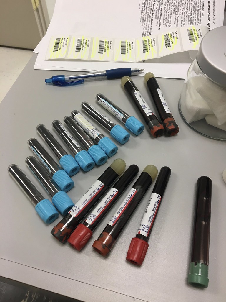 All the blood tests