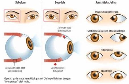 Obat Mata Juling Tanpa Operasi