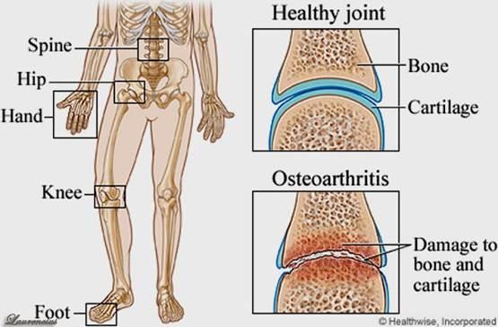 Kumpulan Cara Mengatasi Pengapuran Tulang Belakang