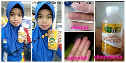 Obat Penyakit Eczema Di Apotik
